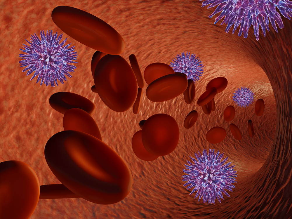 Warfarin Use in End-Stage CDK Patients May Heighten Bleeding Risk