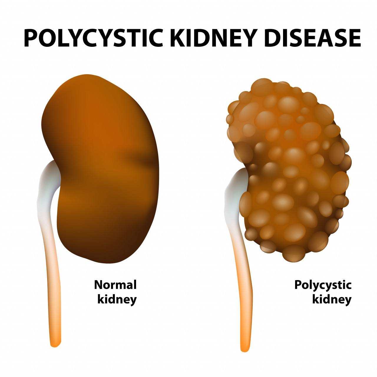 NICE Recommends Otsuka's Tolvaptan for Patients with a Chronic Kidney Disease