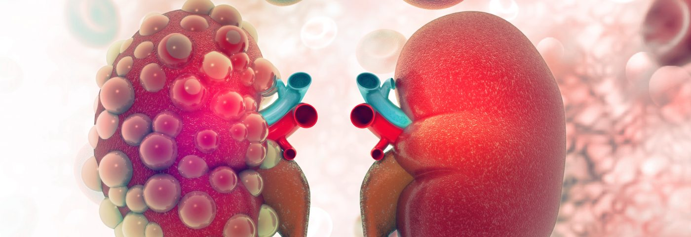 Anti-TNFα Therapy Yields Good Results in Most Kidney Transplant Recipients, Study Finds