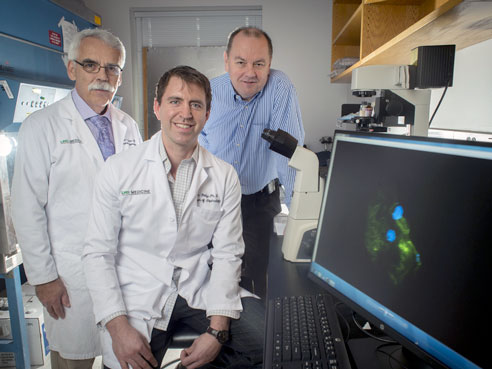 Study Links 2 Genes to Glomerulonephritis, a Rare Kidney Disease